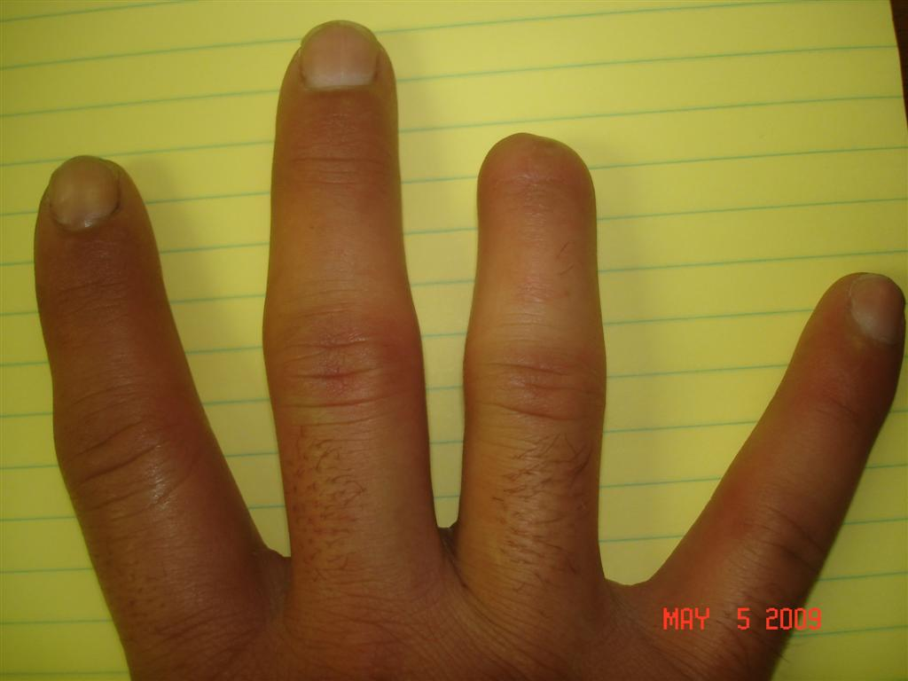 Amputation of Finger | Missouri Work Comp Scar and Disfigurement Lawyer
