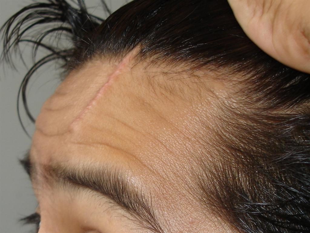 Facial Scar | Missouri Workers Compensation Attorneys
