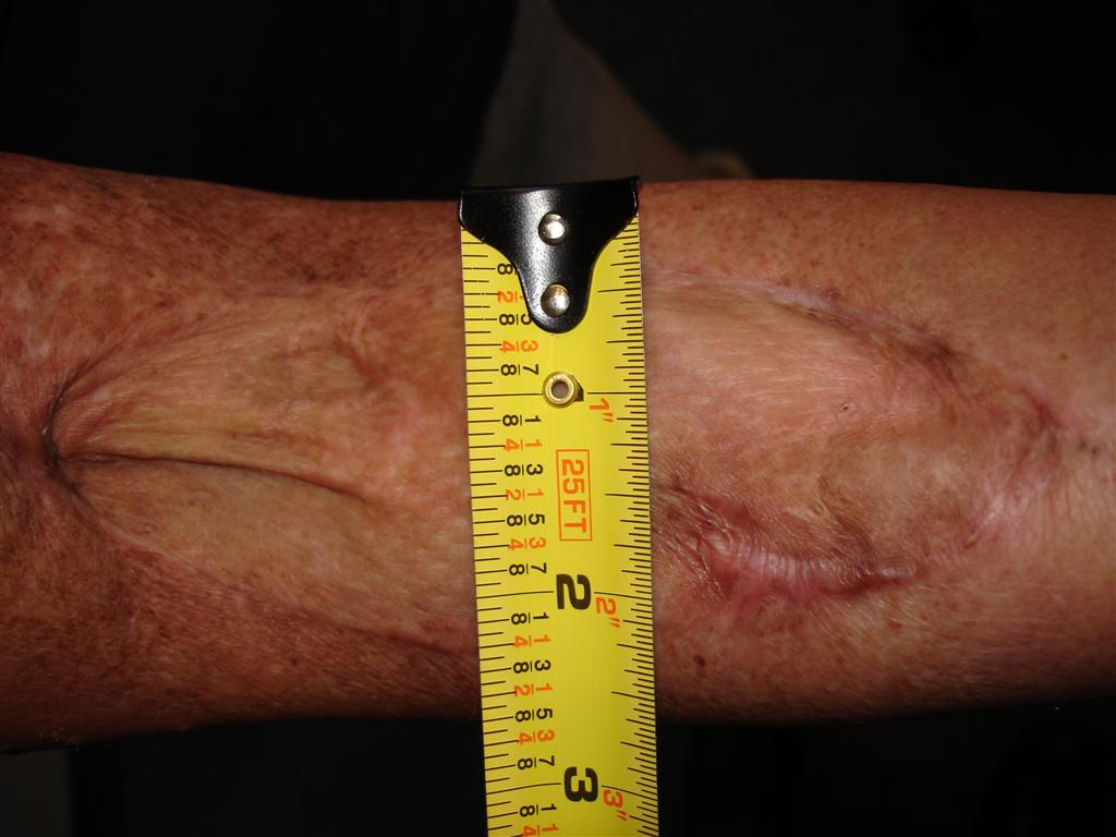 Severe Scarring | MO Work Comp Lawyers